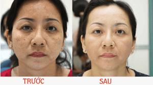 Kem trị nám Niel Thái Lan cho hiệu quả trong 1 đến 2 tháng