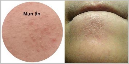 Mụn ẩn dưới da gây sưng tấy, khó điều trị