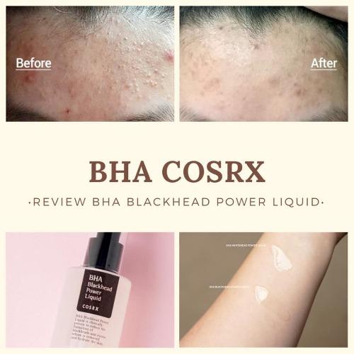 Bha Blackhead Power Liquid hiệu quả trị mụn ẩn sau 3 tuần