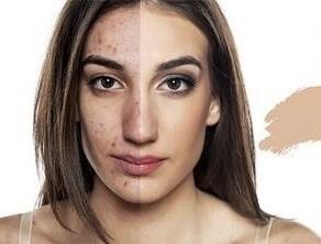Angel Eyes che gần như 100% khuyết điểm trên da