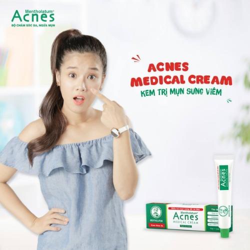 Acnes Medical Cream làm mềm cồi, đẩy cồi mụn ra ngoài dễ dàng