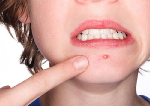 Làm sao để tuyển serum trị mụn phù hợp với da dầu?