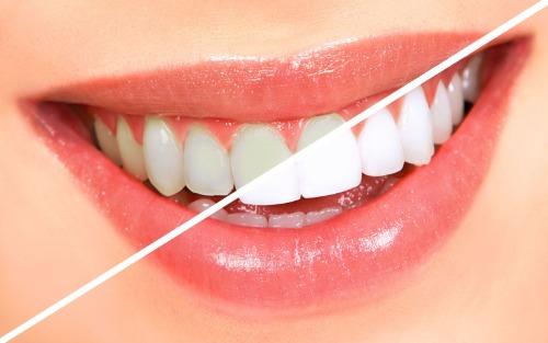 Bàn chải điện giúp răng trắng lên rõ rệt